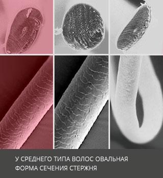 Лечение средних волос - Восстановление и уход в клинике Geocosmed в Москве