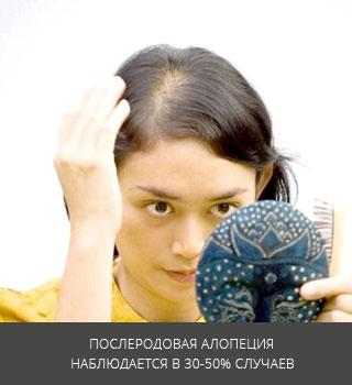Диффузная алопеция - лечение выпадения волос у женщин и мужчин