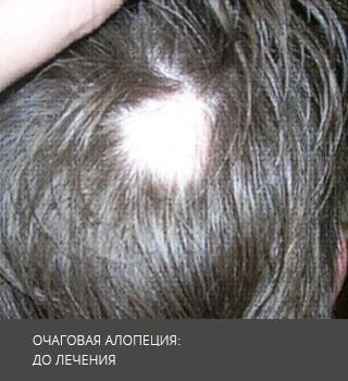 Очаговая алопеция: причины и лечение очаговой алопеции