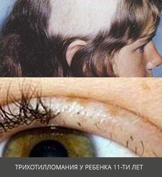 Трихотилломания (синдром Аллопо) - причины и лечение