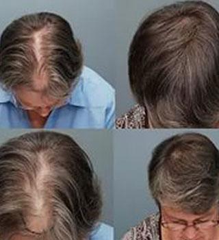 Хорошее народное средство для укрепления и роста волос