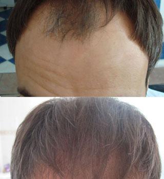 Стоит ли делать пересадку волос