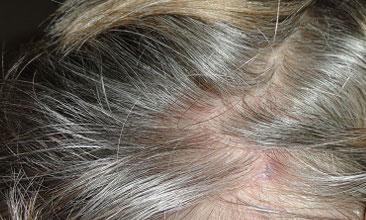 Болячки на коже головы