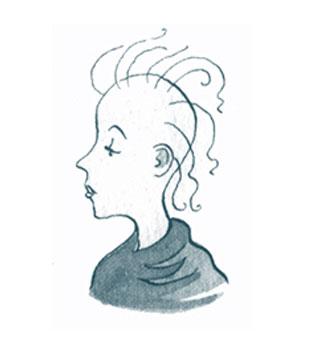 Облысение и выпадение волос.